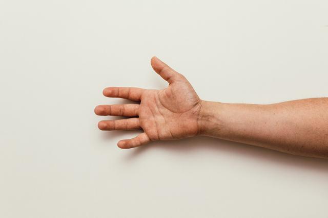 Στην περίπτωση που επιδεινωθούν τα συμπτώματα συνυπάρχει πόνος.