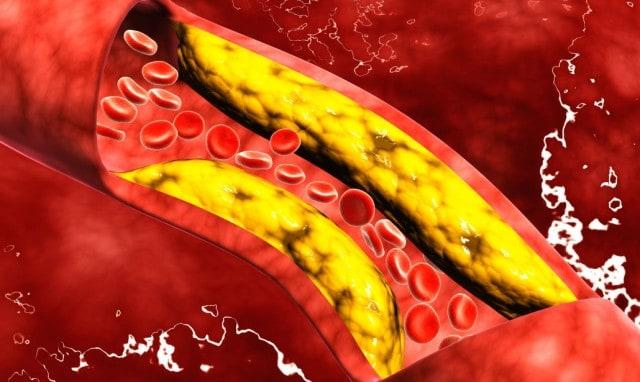 Μείωση Χοληστερόλης Θέλει Τρόπο και Όχι Κόπο 1