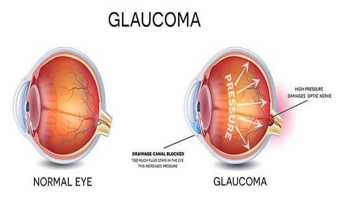 Το γλαύκωμα είναι μία ασθένεια των ματιών που αν παραμείνει ανεξέλεγκτη, συχνά οδηγεί σε τύφλωση.