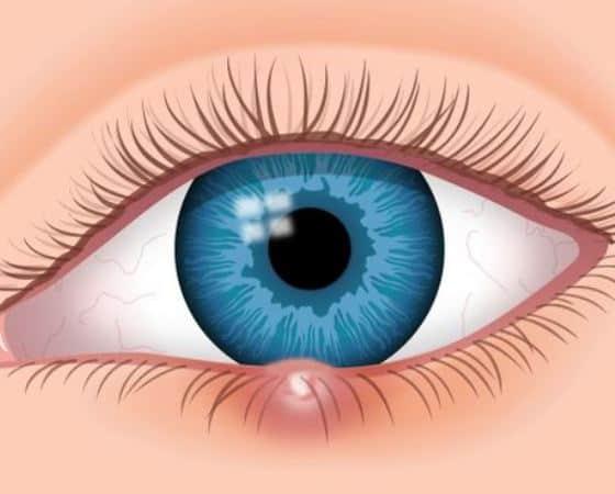 Χαλάζιο στο Μάτι – Τι Πρέπει να Γνωρίζετε