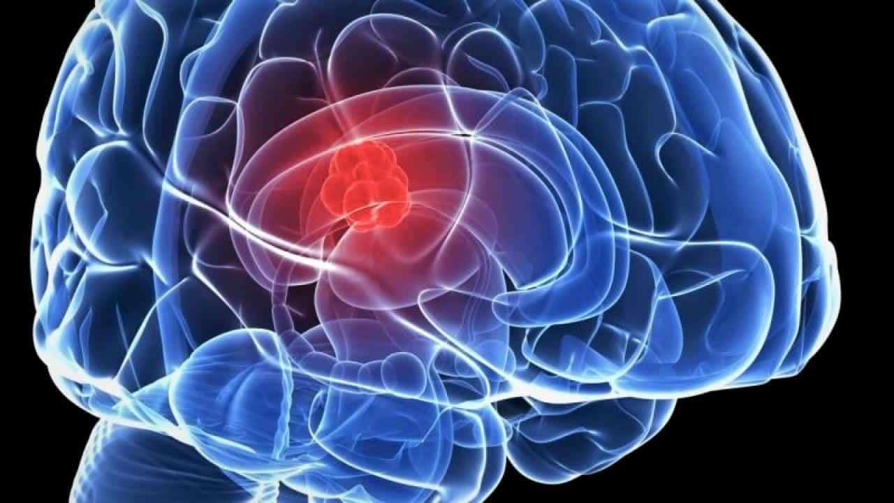 1 στους 4 Ανθρώπους άνω των 25 ετών Κινδυνεύει με Εγκεφαλικό 1