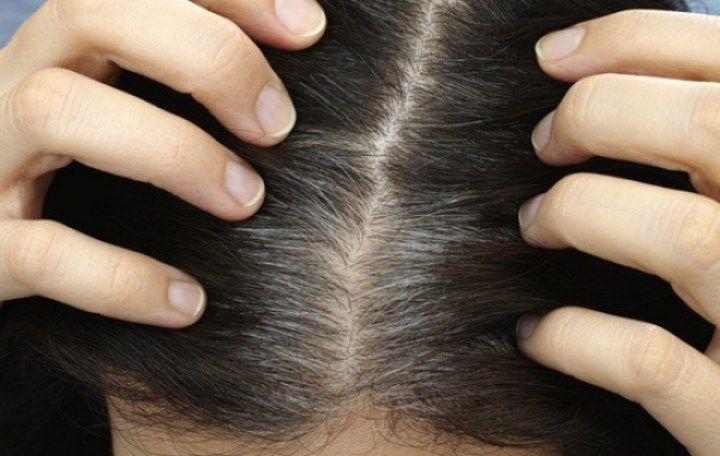 Τα γκρίζα μαλλιά δεν εμφανίζονται σε όλους στην ίδια ηλικία.
