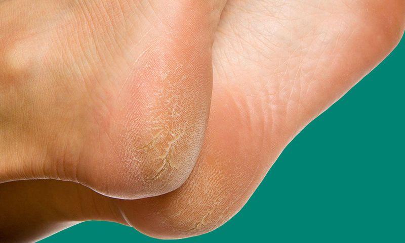 Πρέπει να φροντίσετε να αφαιρείτε τακτικά το νεκρό δέρμα από τις φτέρνες