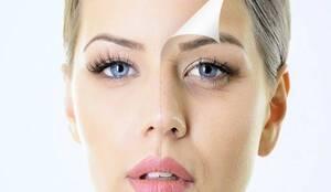 Καθυστερήστε Σημάδια Γήρανσης στο Δέρμα