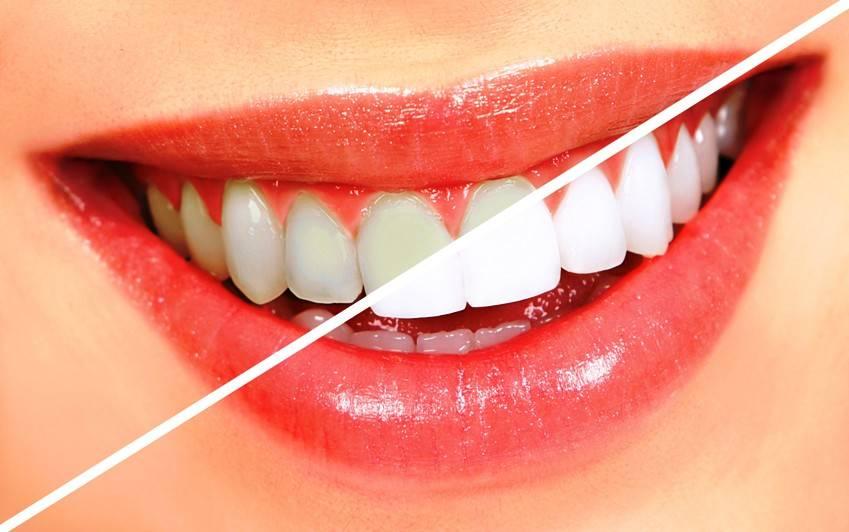 Ας δούμε πώς θα αποφύγετε τις δυσχρωμίες, αποκτώντας λαμπερή οδοντοστοιχία.