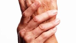 Οι γυναίκες μετά την εμμηνόπαυση εμφανίζουν πιο συχνά αρθρίτιδα από τους άνδρες.