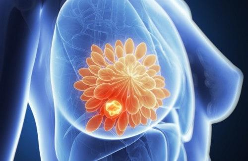 Το στήθος έχει αισθητικό, μητρικό και σεξουαλικό ρόλο στη ζωή της γυναίκας και κάθε ενόχληση σε αυτό χρειάζεται ιδιαίτερη προσοχή.
