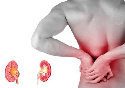 Πέτρες στα νεφρά και μέθοδοι αντιμετώπισης