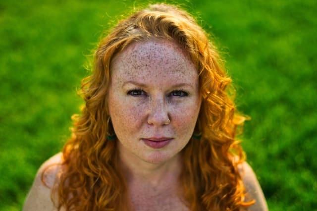 Αν παρατηρείτε σημάδια αποχρωματισμού της επιδερμίδας, το δέρμα σας έχει ήδη υποστεί φθορά, χωρίς αυτό να σημαίνει ότι δεν υπάρχουν περιθώρια αποκατάστασής του.