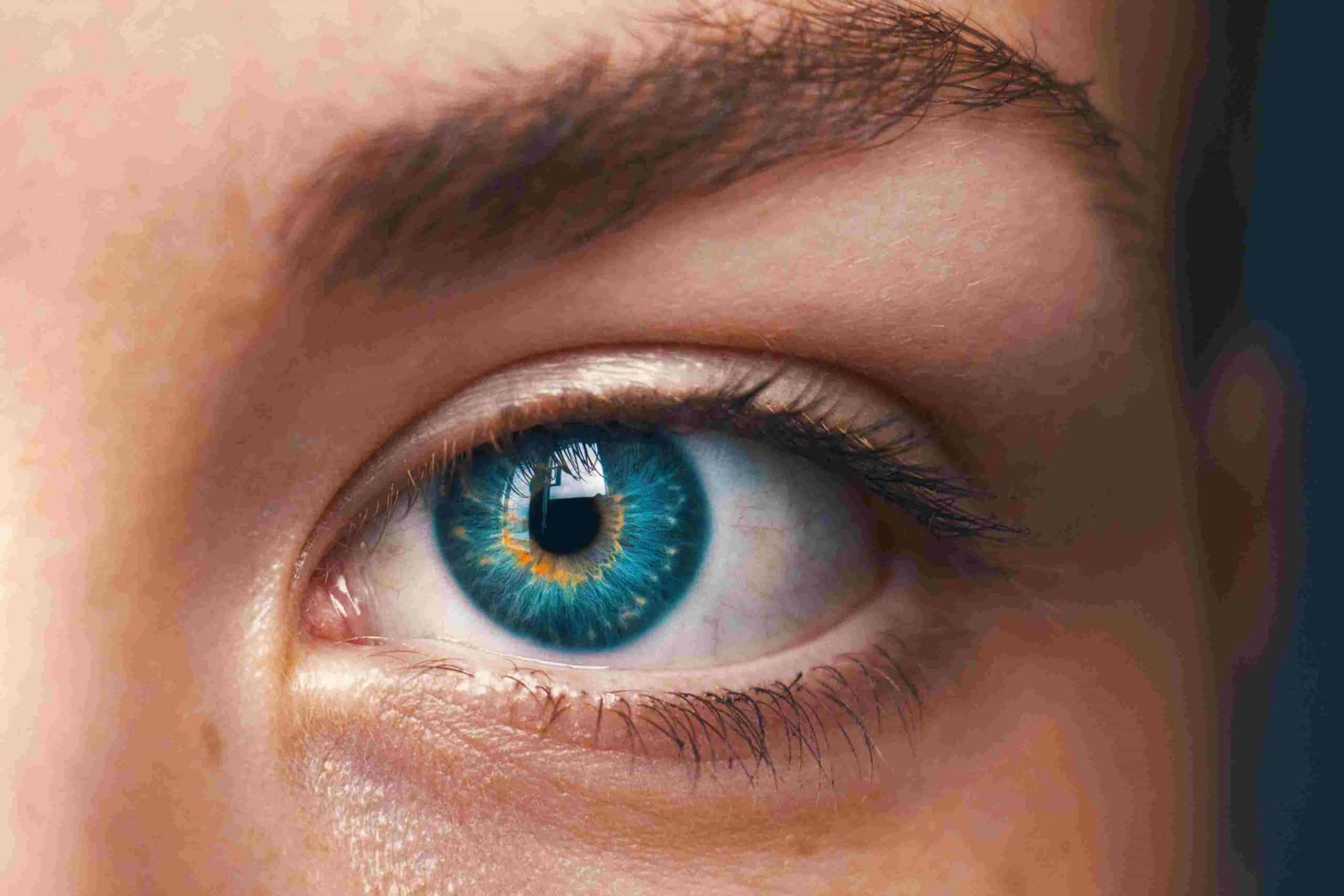 Το κριθαράκι στο μάτι είναι αποτέλεσμα μόλυνσης από το βακτήριο του σταφυλόκοκκου.