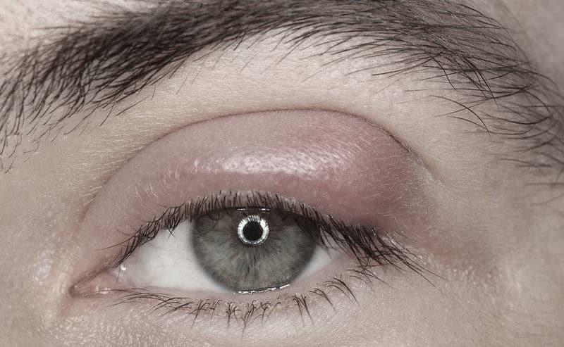 Το κριθαράκι στο μάτι μπορεί να είναι είτε εσωτερικό είτε εξωτερικό.