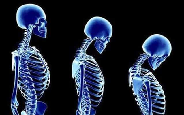 Προστατευτικοί παράγοντες έναντι της νόσου αποτελούν ο αυξημένος δείκτης μάζας σώματος (άτομα δηλαδή παχύσαρκα), τα οιστρογόνα, και η διατροφή πλούσια σε ασβέστιο (κατά βάση γαλακτοκομικά προϊόντα).