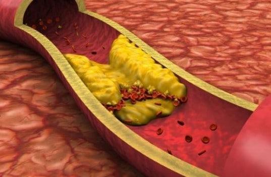 Η αρτηριοσκλήρωση οδηγεί σε υψηλή πίεση και αυξημένη πιθανότητα εγκεφαλικού και καρδιακής προσβολής.
