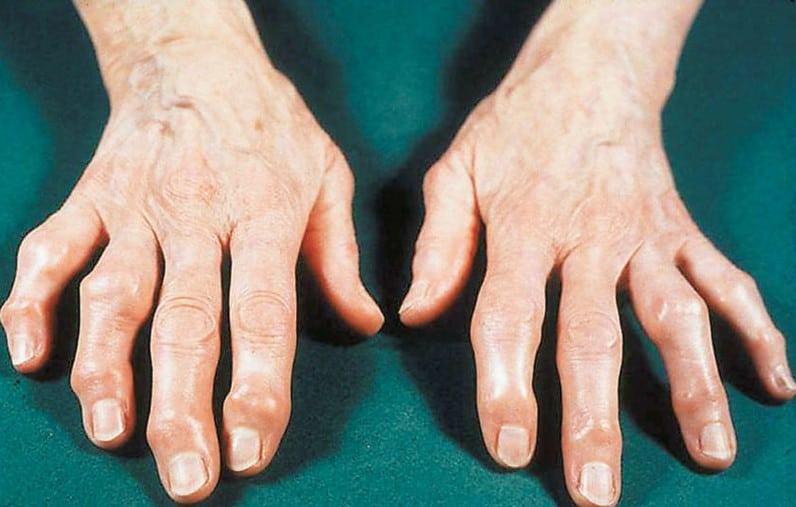 Είναι γεγονός πως η οστεοαρθρίτιδα από μόνη της δεν είναι θανατηφόρος ασθένεια.