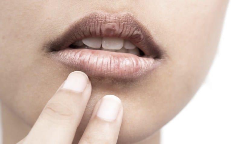Το αυτοάνοσο αυτό επηρεάζει κυρίως τους σιελογόνους και δακρυϊκούς αδένες. XL 1