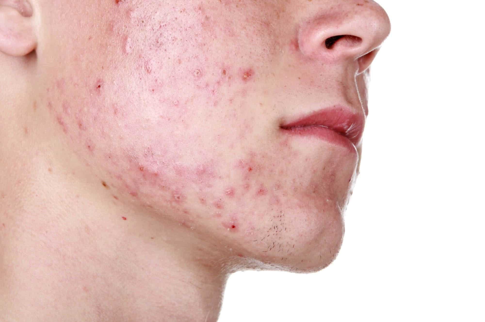 Η κυστική ακμή δημιουργείται ότανμικρές κοκκινωπές διογκώσεις ή αλλιώς οζίδια σχηματίζονταιένα έως δύο χιλιοστά κάτω από την επιφάνεια του δέρματος.