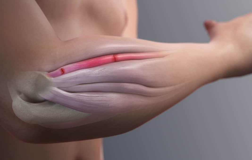 Ο πόνος του αγκώνα του τενίστα εντοπίζεται στην έξω και πλάγια επιφάνεια του αγκώνα, ακριβώς στο σημείο πρόσφυσης των τενόντων και μπορεί να αντανακλά σε όλο τον πήχη μέχρι τον καρπό ή ακόμα και τα δάχτυλα.