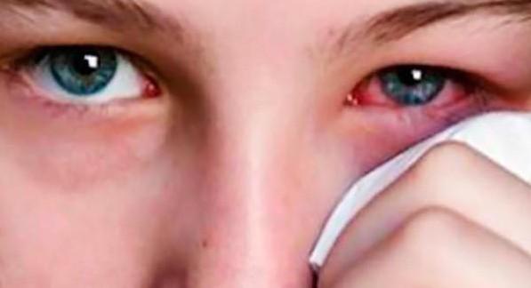 Οι ήπιες επιπεφυκίτιδες συνήθως προκαλούνται από ερεθισμούς.