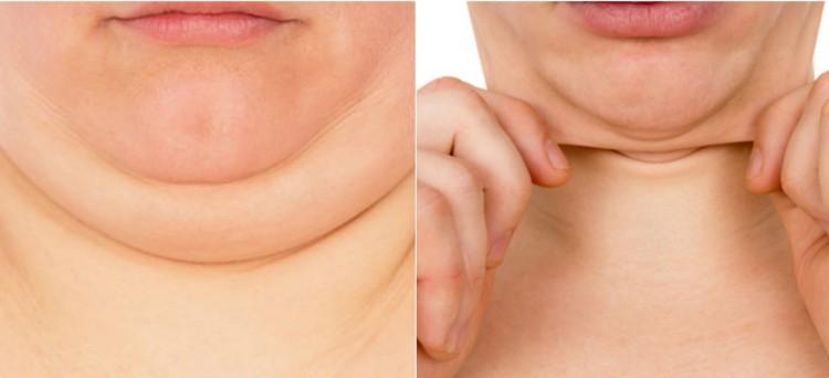 Ο νούμερο ένα λόγος για το λίπος του προσώπου είναι το αυξημένο σωματικό βάρος.