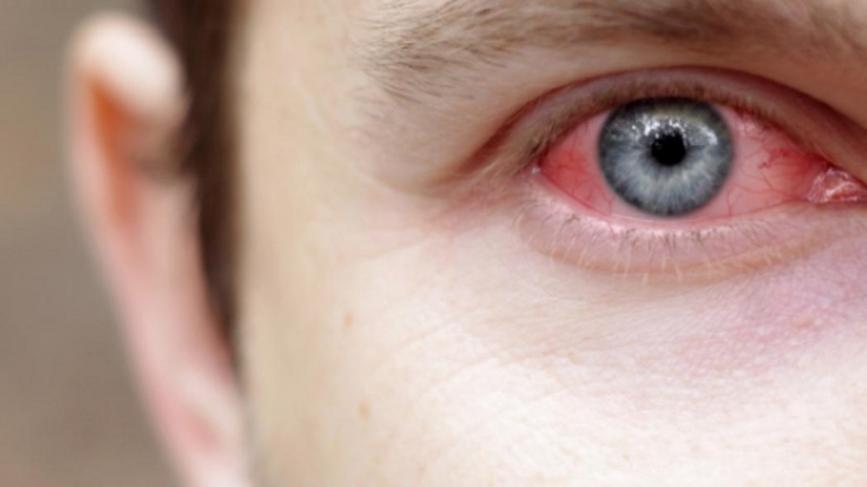 Η αλλεργική επιπεφυκίτιδα, προσβάλλει και τα δύο μάτια. Τα συμπτώματα τα οποία συνήθως εμφανίζονται, είναι δακρύρροια, υπεραιμία, χήμωση, μία αίσθηση ξένου σώματος στο μάτι και ρινίτιδα.