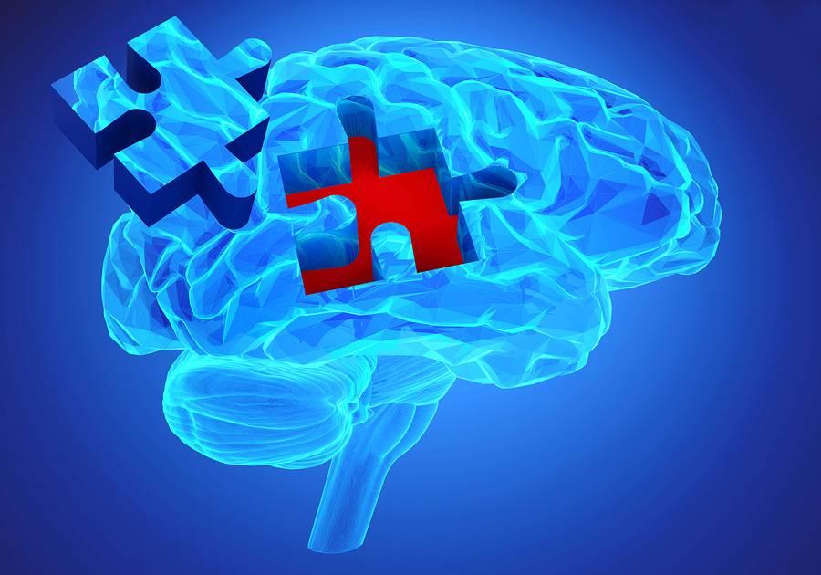 Η Έγκαιρη Ανίχνευση της Νόσου Αλτσχάιμερ Μέσω Συστήματος Τεχνητής Νοημοσύνης.