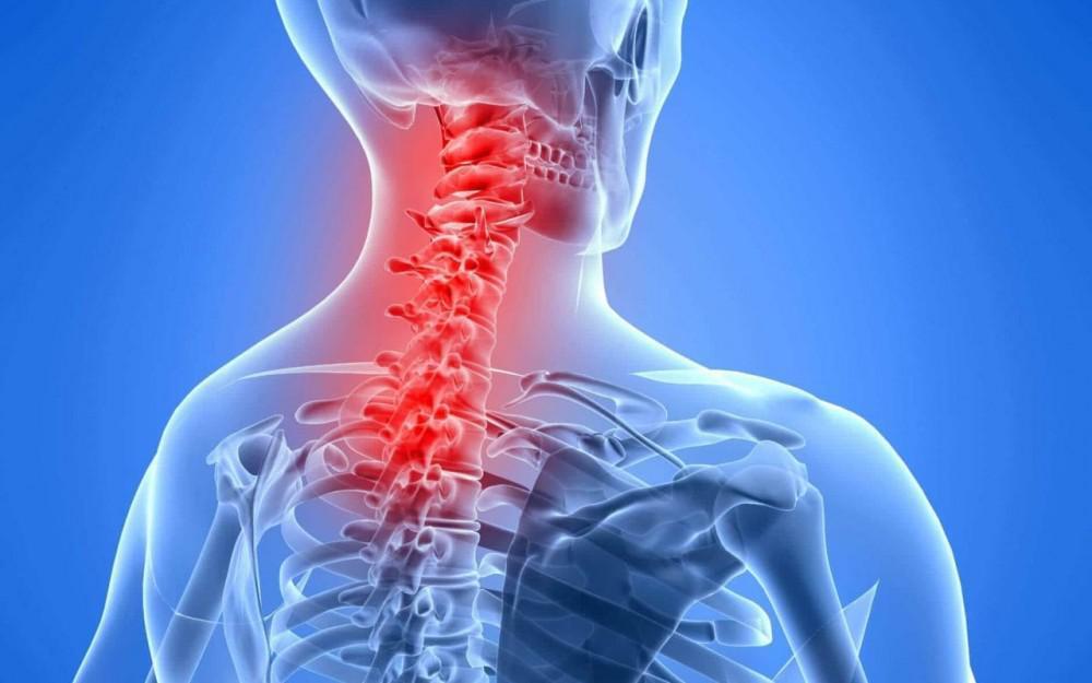 3 Συμπτώματα της Οστεοαρθρίτιδας του Αυχένα