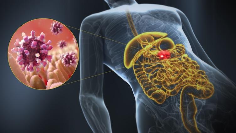 Οι γαστρεντερίτιδες του χειμώνα, οφείλονται κυρίως σε ιούς και έχουν κατά κανόνα ήπια συμπτώματα.