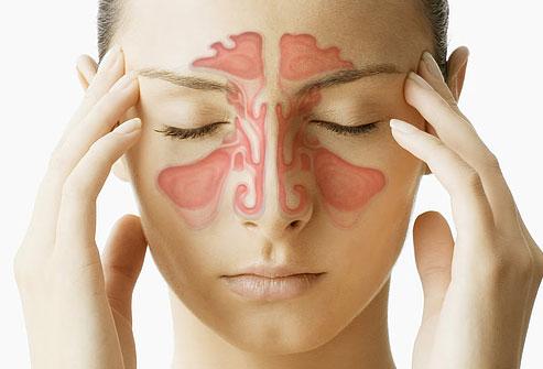 Χρόνια Ιγμορίτιδα: Οι Αιτίες και τα Συμπτώματα