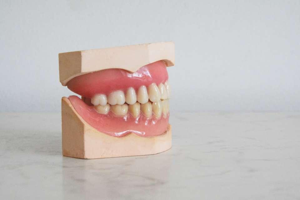 Η πλάκα παράγει οξέα που βλάπτουν το σμάλτο των δοντιών προκαλώντας τερηδόνα και ουλίτιδα.